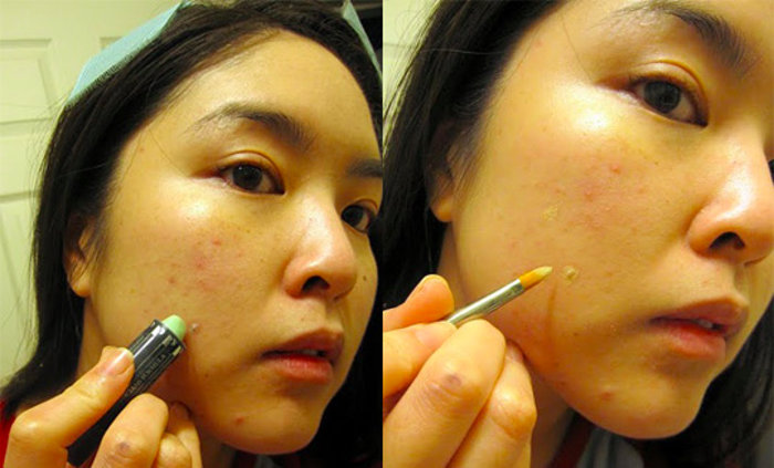 Covering blemishes and acne using concealer
